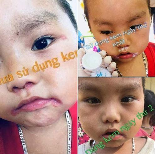 Review kem đông y gia truyền Bà Vân có tốt không